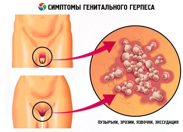 Герпес гениталий