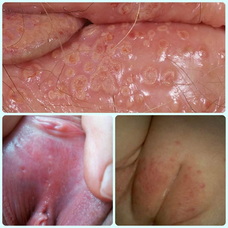 Что такое герпес на половых губах