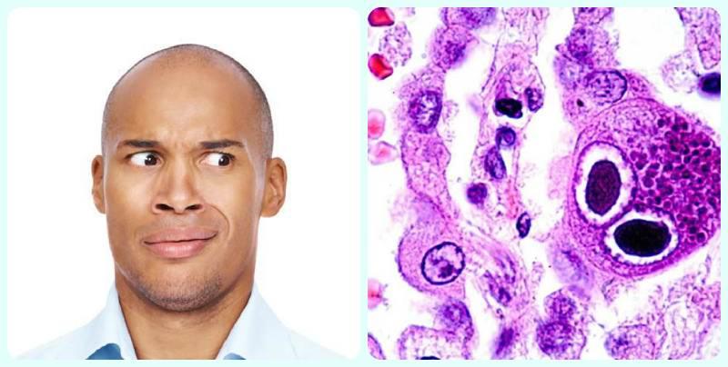 Цитомегаловірус у чоловіків » журнал здоров'я iHealth