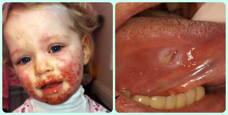 вирусный герпес у детей на теле фото