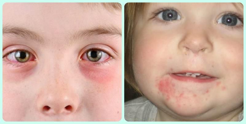 Герпетический вирус в горле у ребенка фото