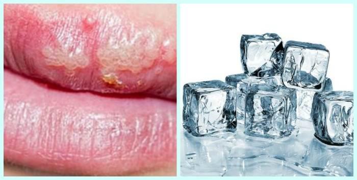 герпес на губах домашнее лечение