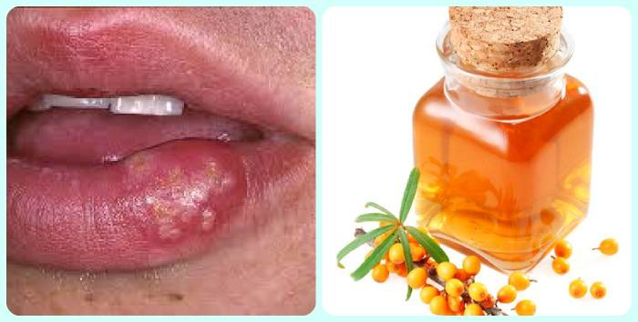 чем лечить герпес на губах в домашних