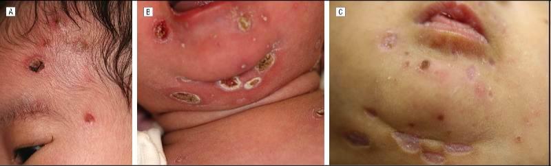 Цитомегаловирус симптомы