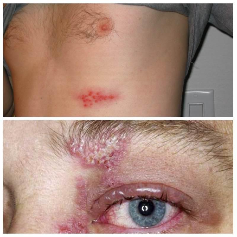 Герпес 3 типа симптомы, фото