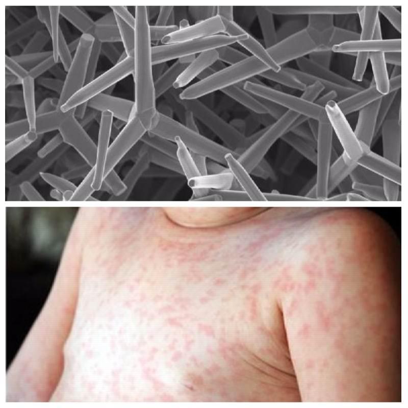 Вирус герпеса 7 типа