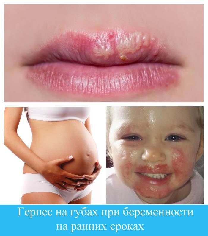 Герпес на губах при беременности на ранних сроках