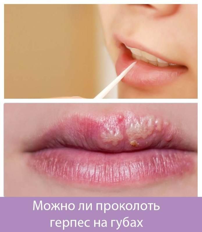 Чи можна проколювати герпес на губі? Інформаційна стаття про герпес » журнал здоров'я iHealth