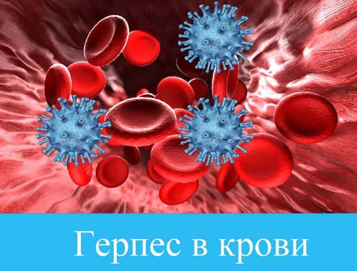 Герпес в крови