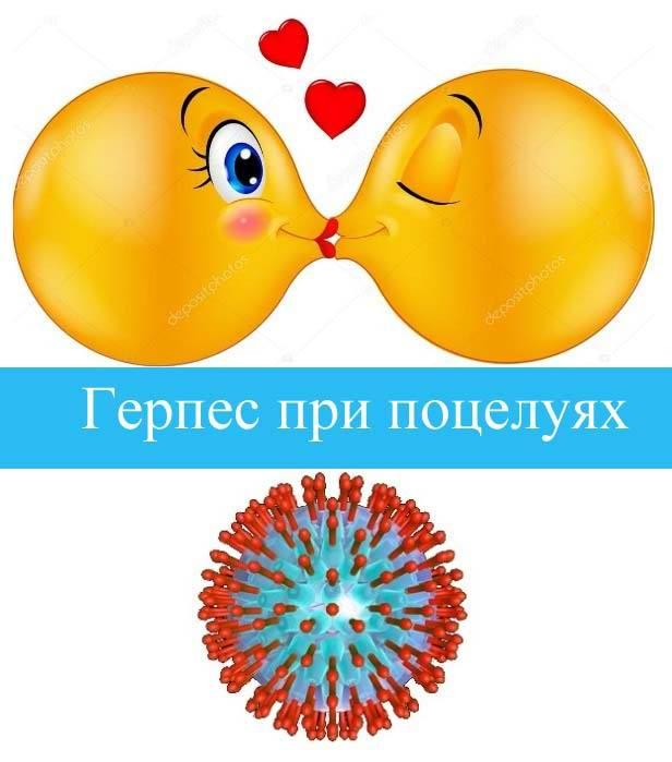Герпес при поцелуях