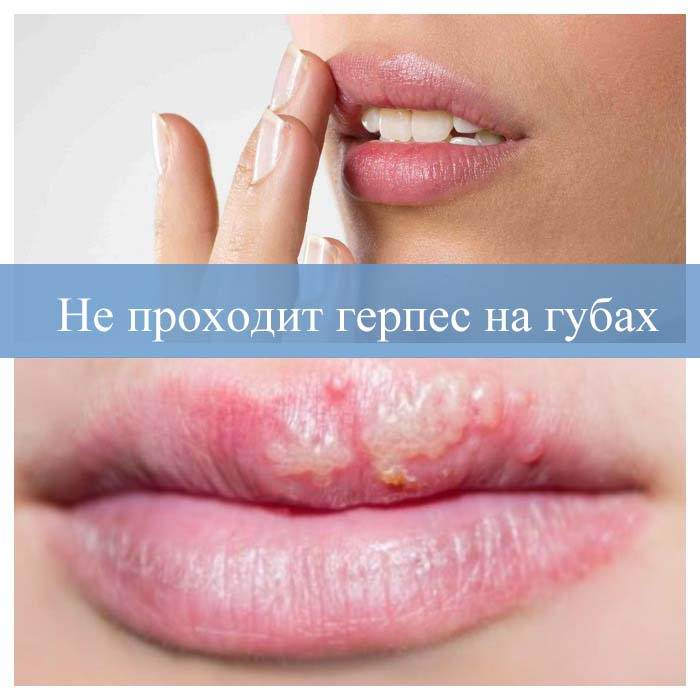 Не проходит герпес на губах