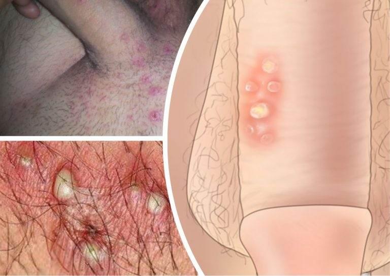 в местах интимных дерматит болячки