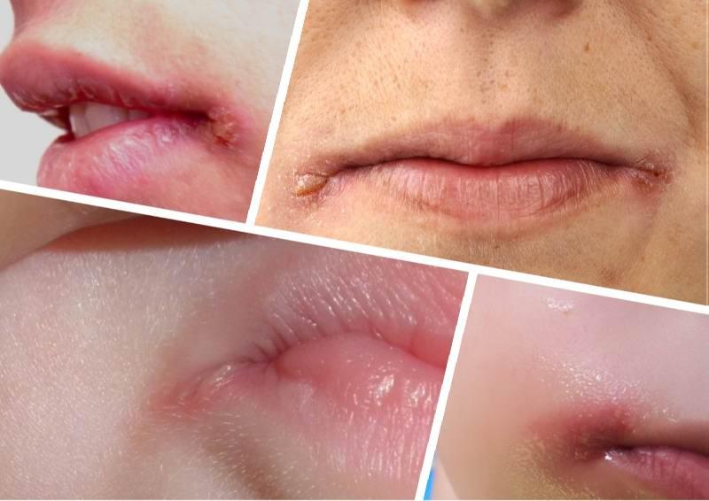 Герпес в уголках губ