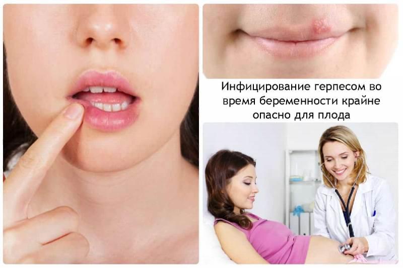 Герпес во время беременности последствия