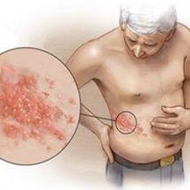 Герпес, Цитомегаловирус признаки, лечение и диагностика.
