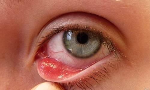 глазной герпес симптомы фото