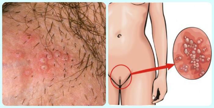 Причины появления герпеса на лобке и методы его лечения