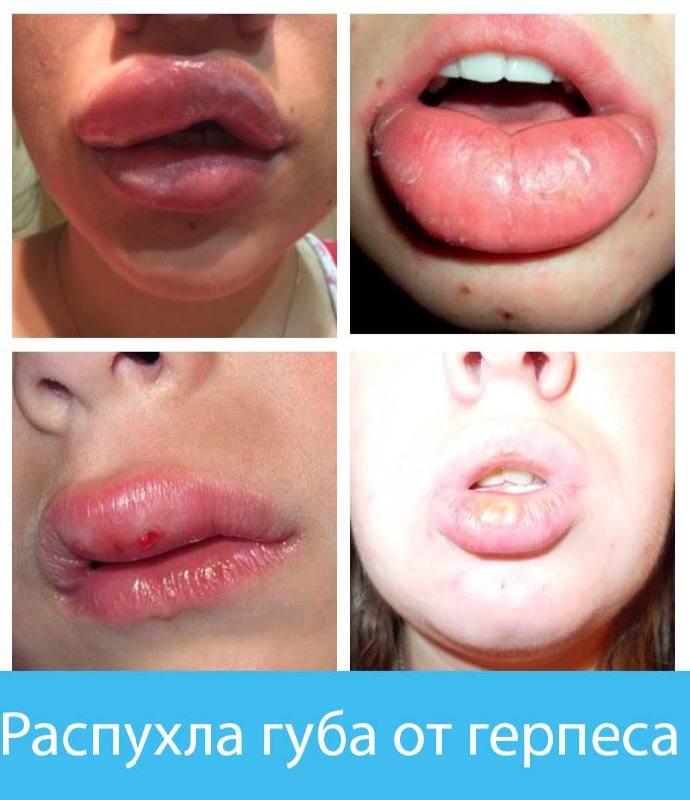 Что делать, если опухают губы от герпеса